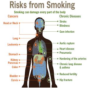 Smoking-Facts