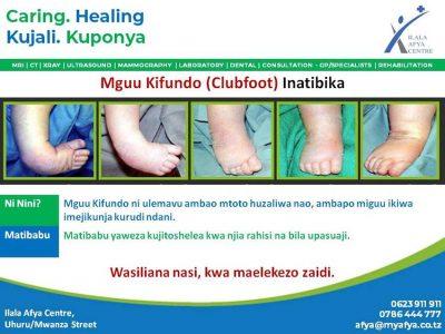 Ilala-Afya-Centre-Mguu-Kifundo-Clubfoot-Inatibika